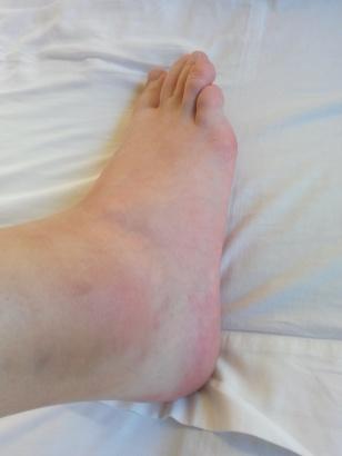 Målfrid sin hovne fot